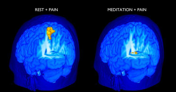 Mediteren meditatie chronische pijn